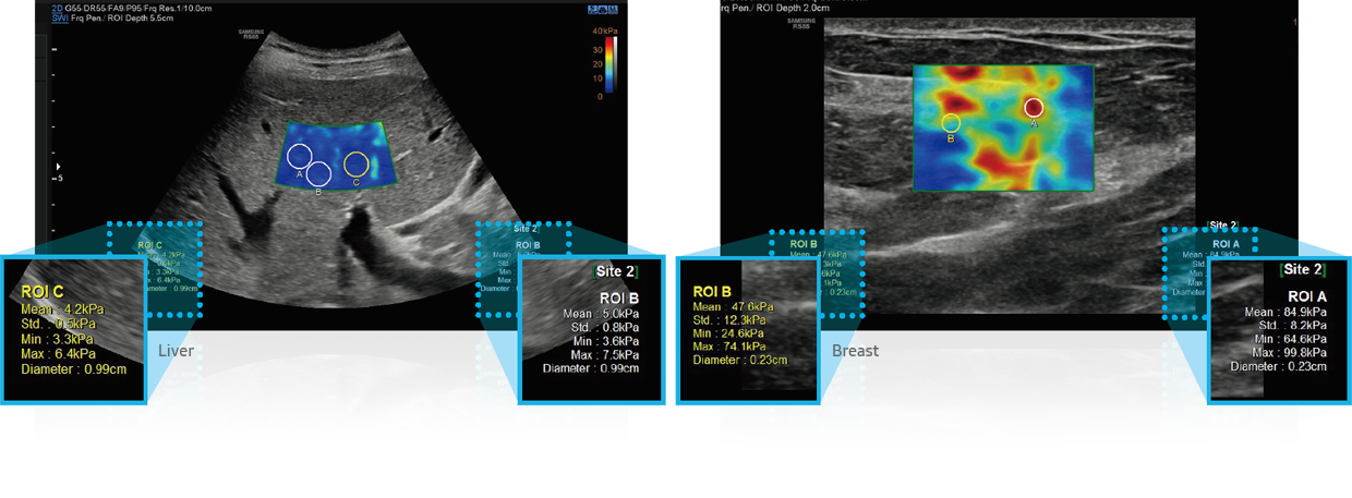 S-Shearwave Imaging™_Breast