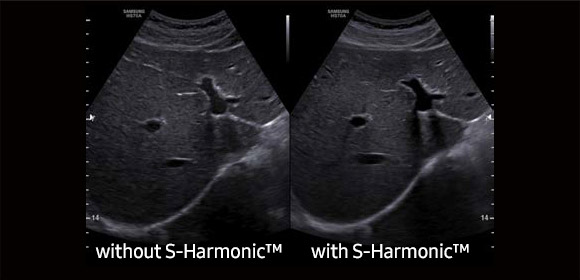 S-Harmonic™ Sample