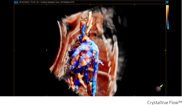 Fetal circulation in CrystalVue Flow™