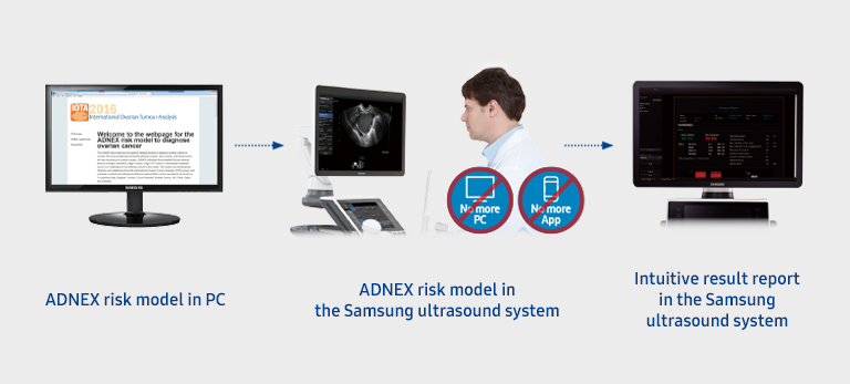 ADNEX risk model in PC/ADNEX risk model in the Samsung ultrasound system/Intuitive result report in the Samsung ultrasound system