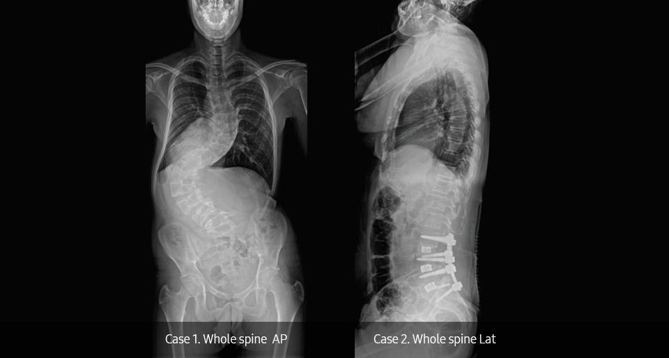 Röntgenaufnahme eines Thorax von vorne und von der Seite; aufgenommen mit dem digitalen Röntgensystem GC85A von Samsung