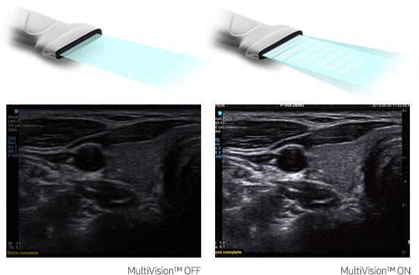 Immagine con sistema MultiVision acceso