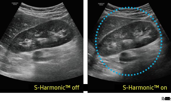 Immagine clinica del rene otenuta con S-Harmonic