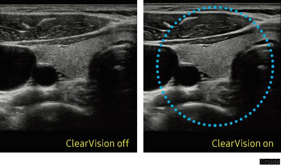Immagine clinica della tiroide ottenuta con ClearVision