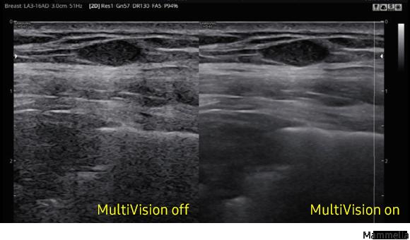 Immagine clinica della mammella ottenuta con software MultiVision