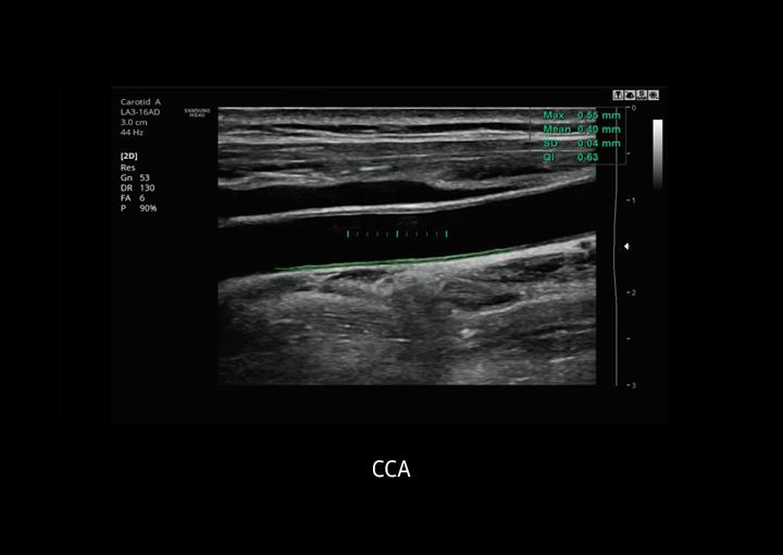 Immagine clinica di CCA ottenuta con Auto IMT+