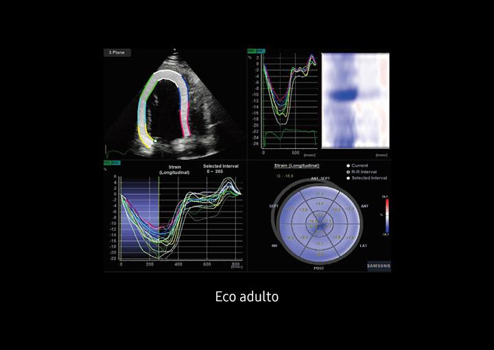 Immagine ecografica sull'adulto utilizzando Strain+