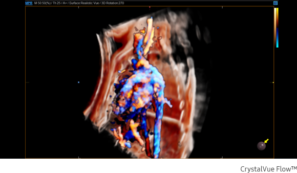 Immagine clinica della colonna vertebrale fetale ottenuta con software Crystal Vue Flow™
